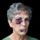 A domestic violence victim with intimidation, badly beaten grandmother